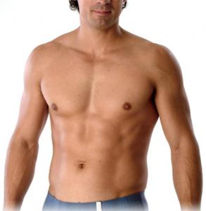 male breast reduction, gynecomastia, san diego
