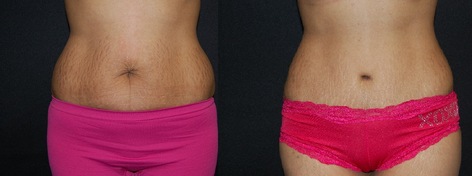 tummy tuck belly button
