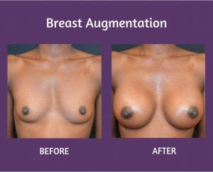 img-blog-breastaug-before16-after16-blog2
