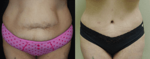before-and-after-tummy-tuck-surgery