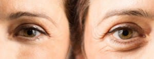 eyes-with-and-without-crows-feet