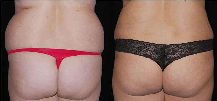 Why Is Liposuction So Popular?   Dr  Larry Pollack