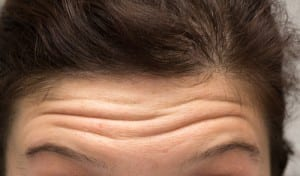 Woman With Wrinkles on Forehead