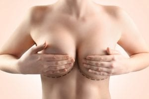 Woman breast closeup Plastic Surgery