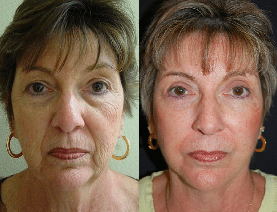 Facelift 6before6aafter6a-img-blog