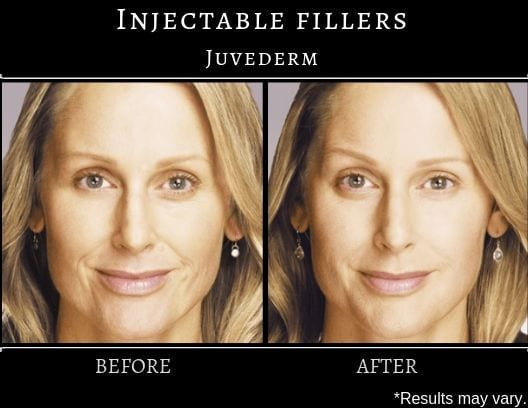 A woman before and after juvederm treatment who had improvement in facial volume, wrinkles, and fine lines throughout the face.