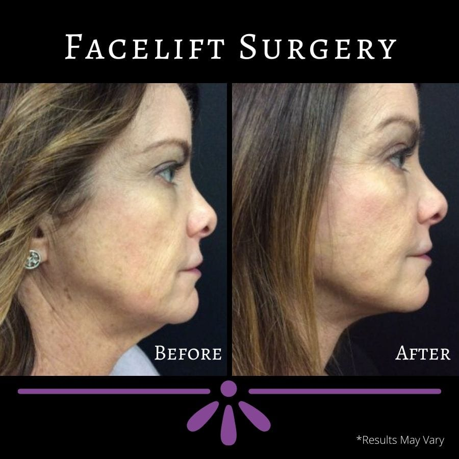 before-and-after-facelift-face-right-12.12.2018-6212833-face-right-03.20.2019-7186028