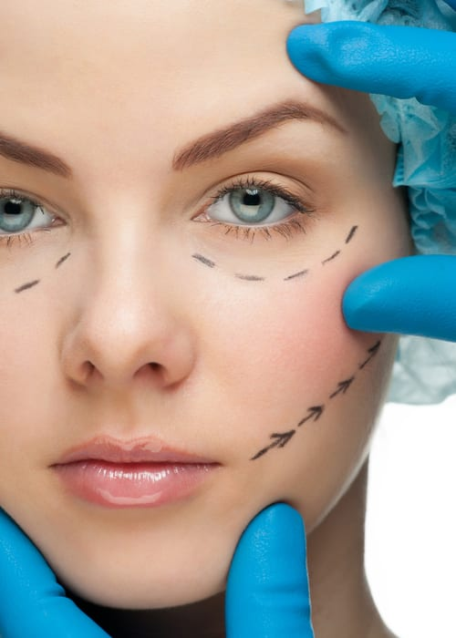 Woman with surgical lines drawn on face mimicking those of facelift surgery and eyelid surgery.